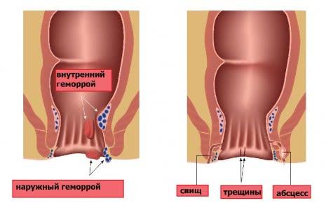 Геморрой и анальные свищи