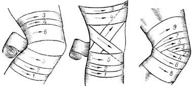 Как накладывать черепашью повязку? Запомните эту инструкцию