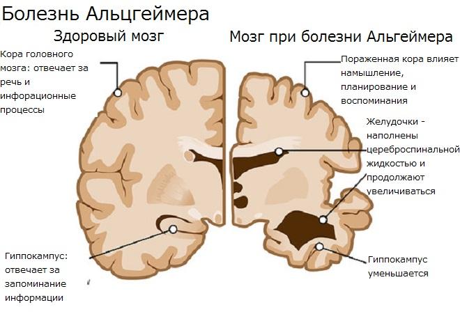 Что происходит в мозгу
