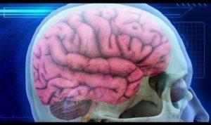 Мозг страдает первый