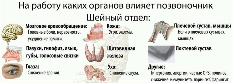 Остеохондроз шеи 13 последствий, если его не лечить