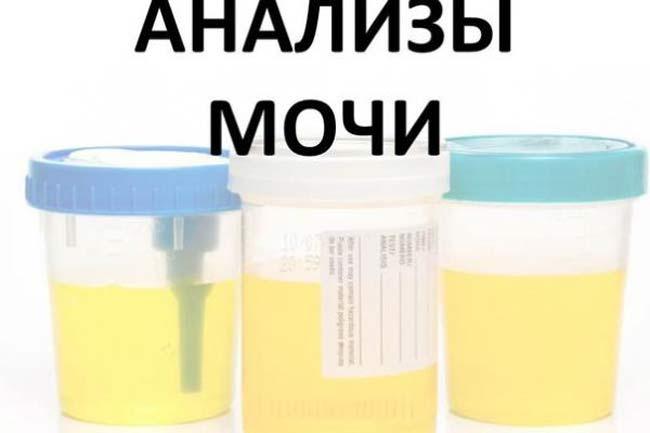 Анализ мочи на белок