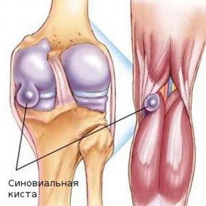 Причины возникновения кистозных образований