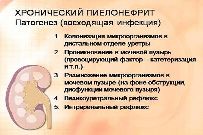 Хронические пиелонефрит