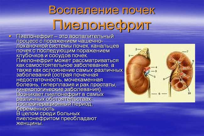 Что такое пиелонефрит почек