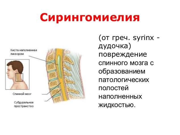 12 признаков сирингомиелии что это за киста и чем она опасна?