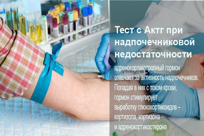 АКТГ - адренокортикотропний гормон