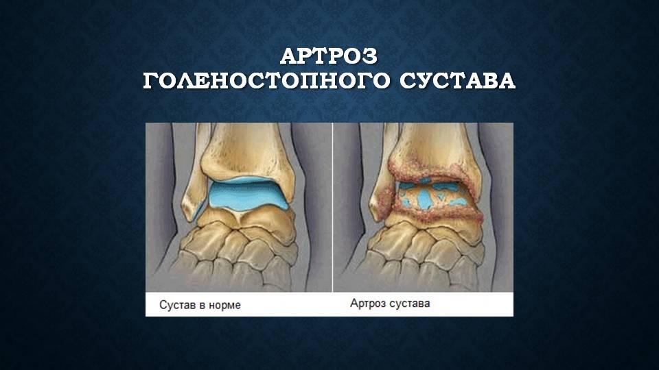 Травмы голеностопа 10 разновидностей, лечение и реабилитация