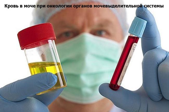 Кровь в моче при онкологии