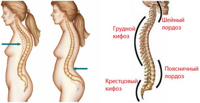 Проблемы с позвоночником и болезни спины: шейный отдел, грудной, поясничный.