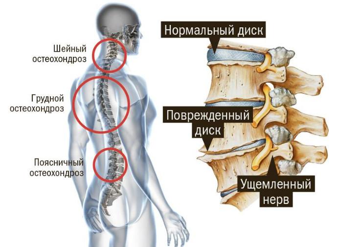 5 причин боли в груди при остеохондрозе, может ли туда отдавать? Какой характер боли?