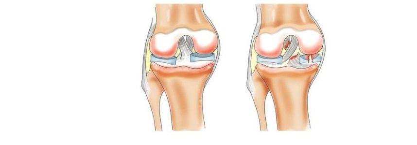 Проблемы со связками в коленях (лигаментоз) что делать спортсменам в первую очередь?