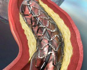 Сколько живут после стентирования сердца?