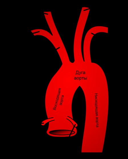 Что делать при сердечном артериальном давлении 60, методы лечения, последствия, профилактика и причины гипотонии