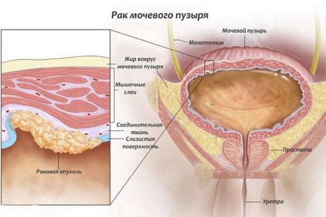 Рак слизистой мочевого пузыря