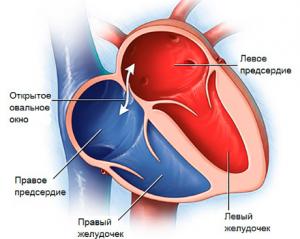 Открытое овальное окно в сердце у ребенка: насколько это страшно?
