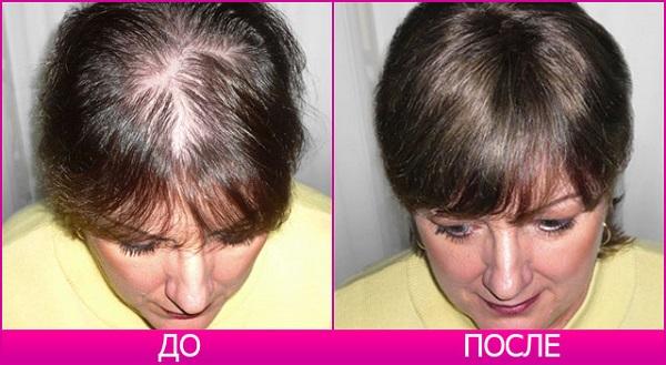 Волосы до и после лечения андрогенной алопеции