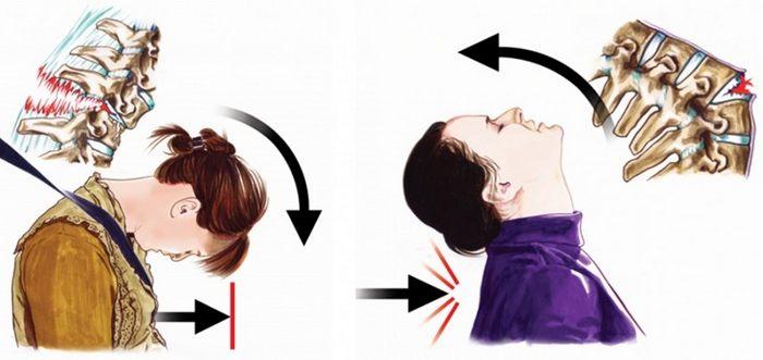 Что делать если сломал шею? 4 опасных последствия.