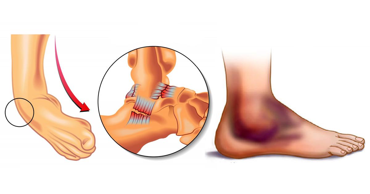 Артроз суставов колена лечение