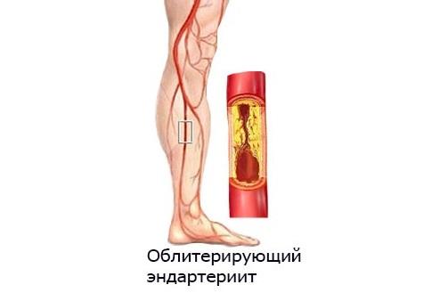 6 болезней при которых есть боль в стопе посередине с внутренней стороны