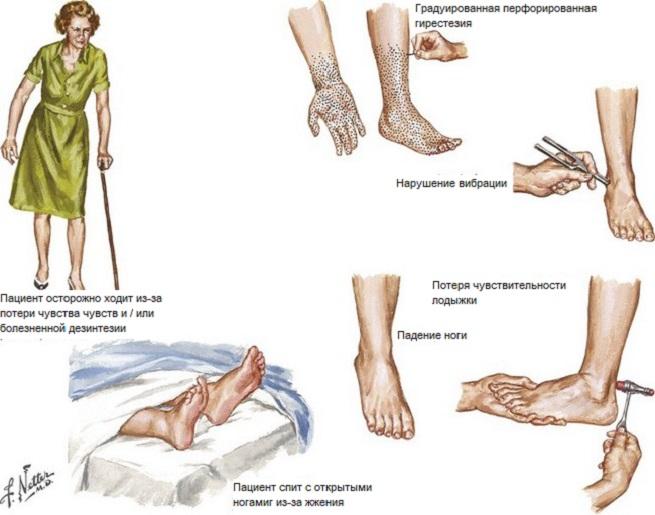 Некоторые особенности болезни