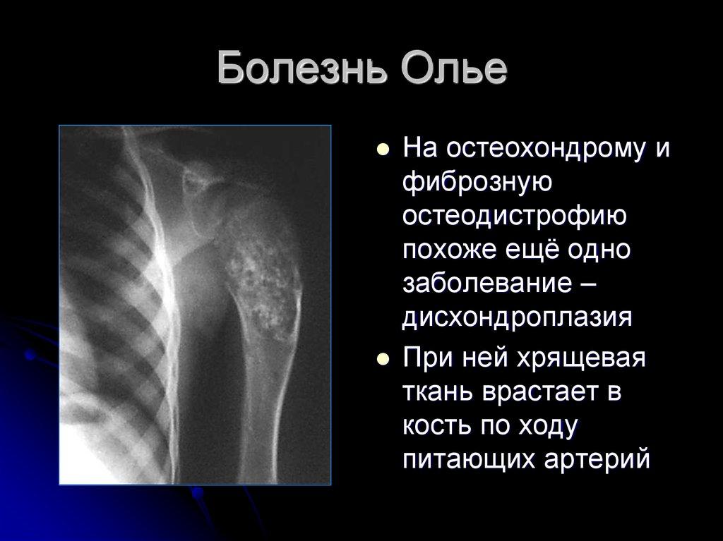 4 причины энхондромы бедренной кости. Когда нужна операция?