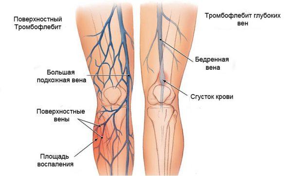 15 причин боли и воспаления голеностопного сустава как лечить?