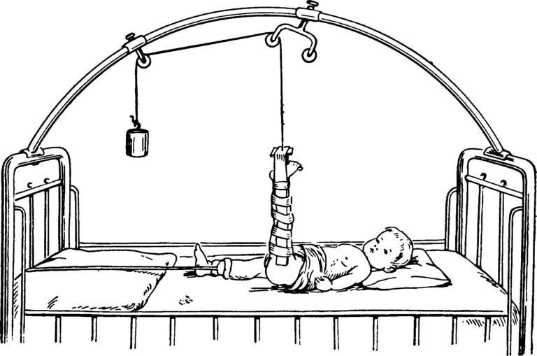 Перелом бедра у детей 5 правил ПМП и лечение