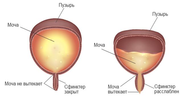 Гипоактивный нейрогенный мочевой пузырь