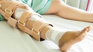 Метод лечения при перелома коленной чашечки