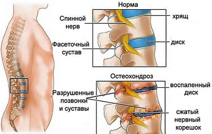 Рецепт мази из соли и масла при остеохондрозе