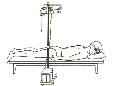 Остеомиелит (воспаление костного мозга) позвоночника 3 симптома и последствия