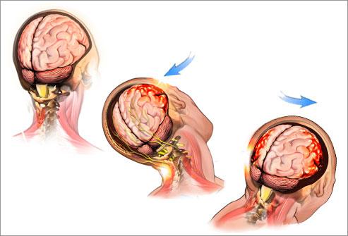 Что происходит с мозгом