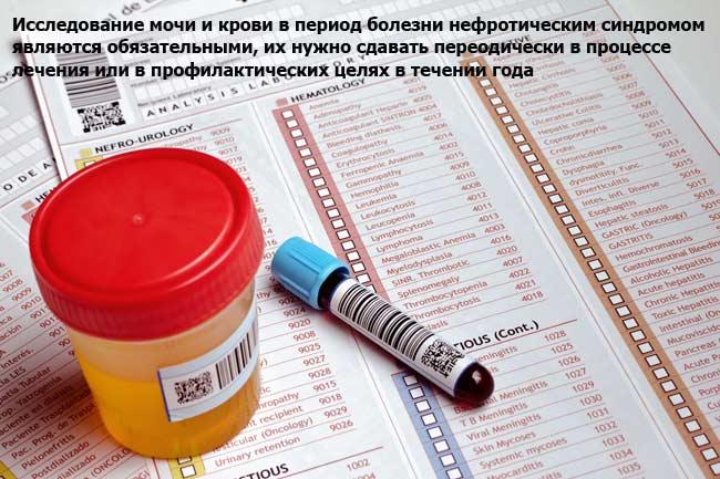 Исследования анализа крови и мочи