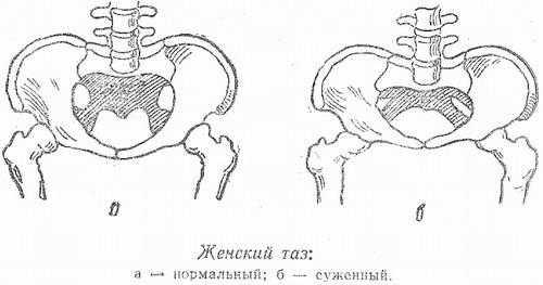Когда и как начинают расходиться кости таза при беременности?