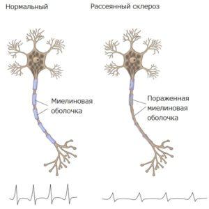 Что поражает склероз