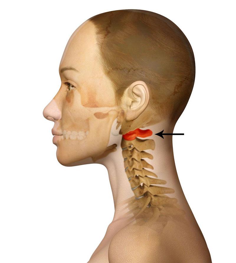 7 признаков подвывиха шеи и как оказать первую помощь? Это всегда может пригодиться!