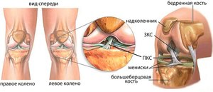 Методы лечения крестообразной связки