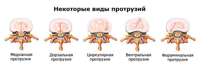 4 отличия протрузии от грыжи