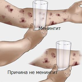 Тест со стаканом