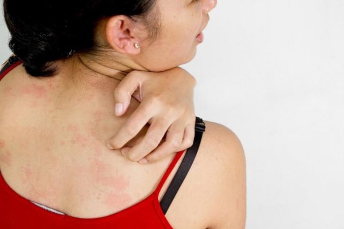 Перцовый пластырь при остеохондрозе: 6 противопоказаний. Помогают ли Китайские пластыри