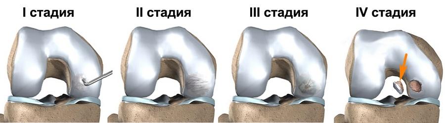 Рассекающий остеохондрит таранной кости у детей и взрослых, как лечить болезнь Кенига?