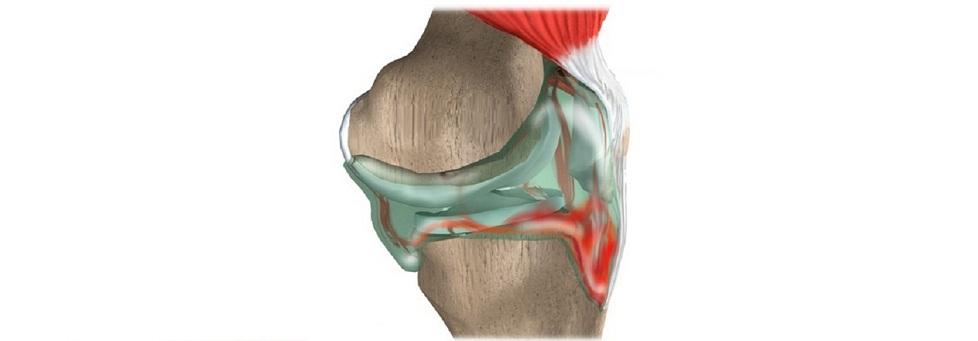Что делать при скоплении крови в коленном суставе после травмы (гемартроз)
