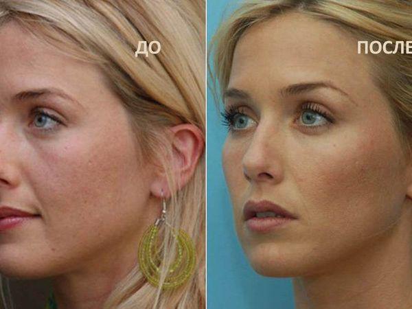 Фото до и после выравнивания носогубных складок