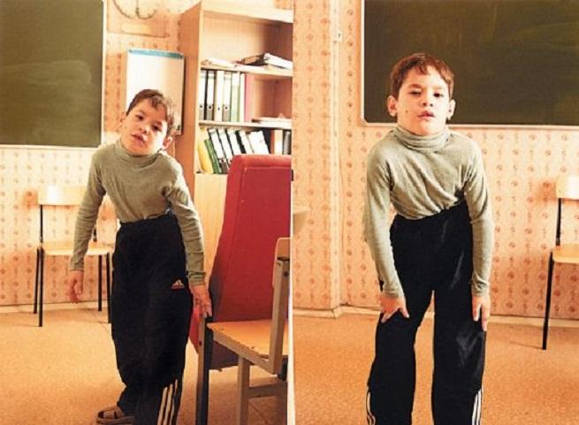 ребенок с атаксической формой
