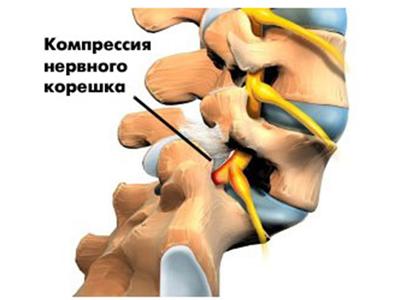 Радикулопатия пояснично-крестцового отдела позвоночника или корешковый синдром