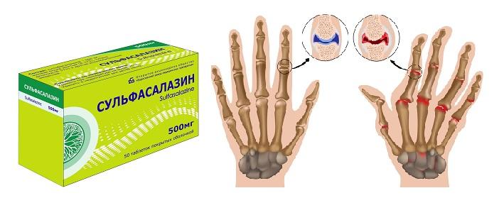 Сульфасалазин от артрита