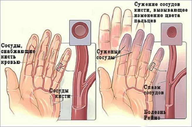 Причины недуга