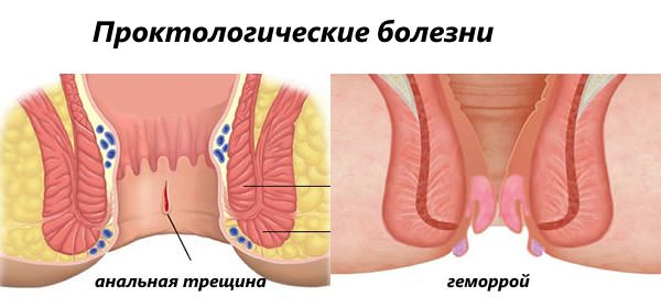 Анальная трещина
