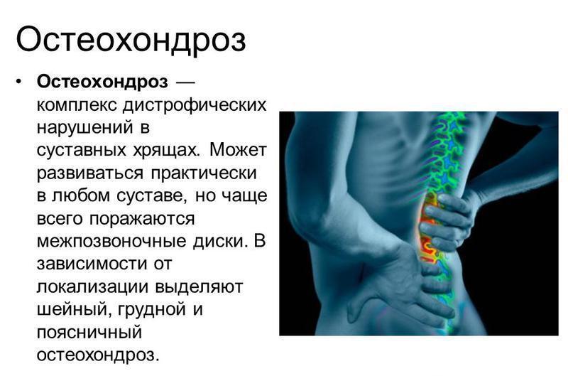 13 Трав при остеохондрозе и как ими лечиться, чтобы не навредить?